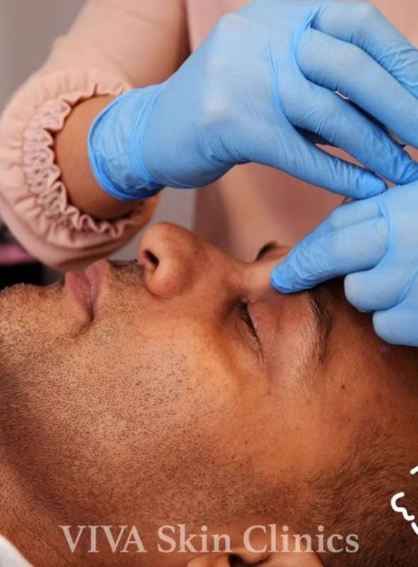 When to have aesthetic treatments before a big event